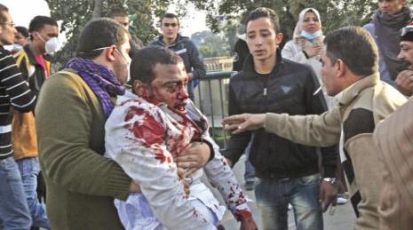 جريح في مواجهات القاهرة أمس (تارا تودراس ــ أ ب)