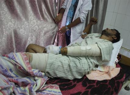 مصابو غزة في العريش: استجاروا من النار بالرمضاء