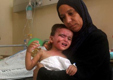 غزة: الطب التجميلي  يعجز عن مداواة المئات