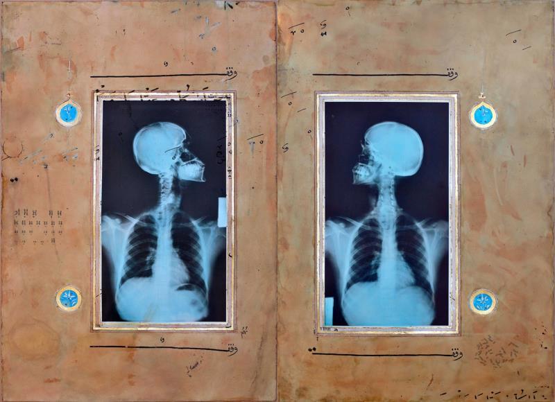 """من مجموعة """"إضاءات"""" للسعودي أحمد ماطر (ورق الذهب وحبر صيني وشاي ورمان وفيلم فوتوغرافي بأشعة سينية على ورق ــ 152 × 102 سنتم ــ 2010)"""