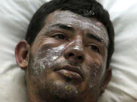 أحرق نفسه في صيدا: تعبنا من البلد