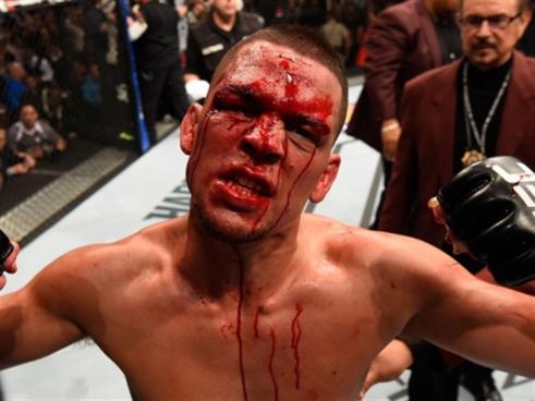 «UFC» في زمن الجلادين العبيد