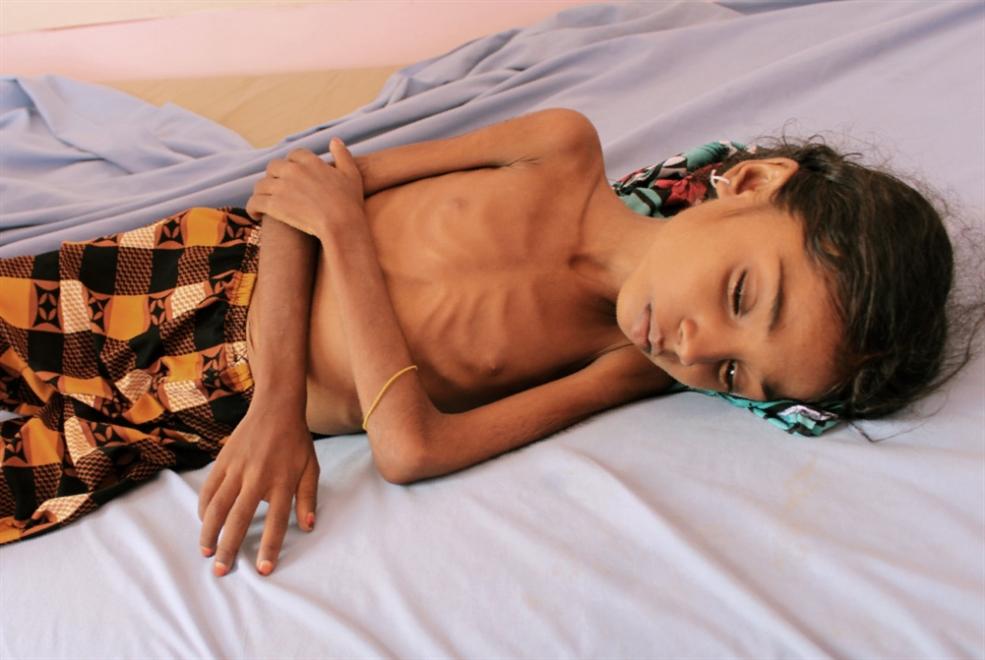 «نيويورك تايمز» تكتشف مأساة اليمن