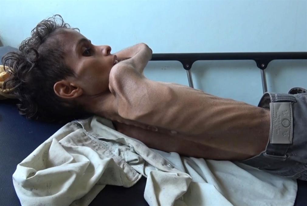 منظمة: سوء التغذية الحادّ أودى بحياة 85 ألف طفل