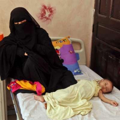 85 ألف طفل يمني قضوا جوعاً: جريمة البطون الخاوية