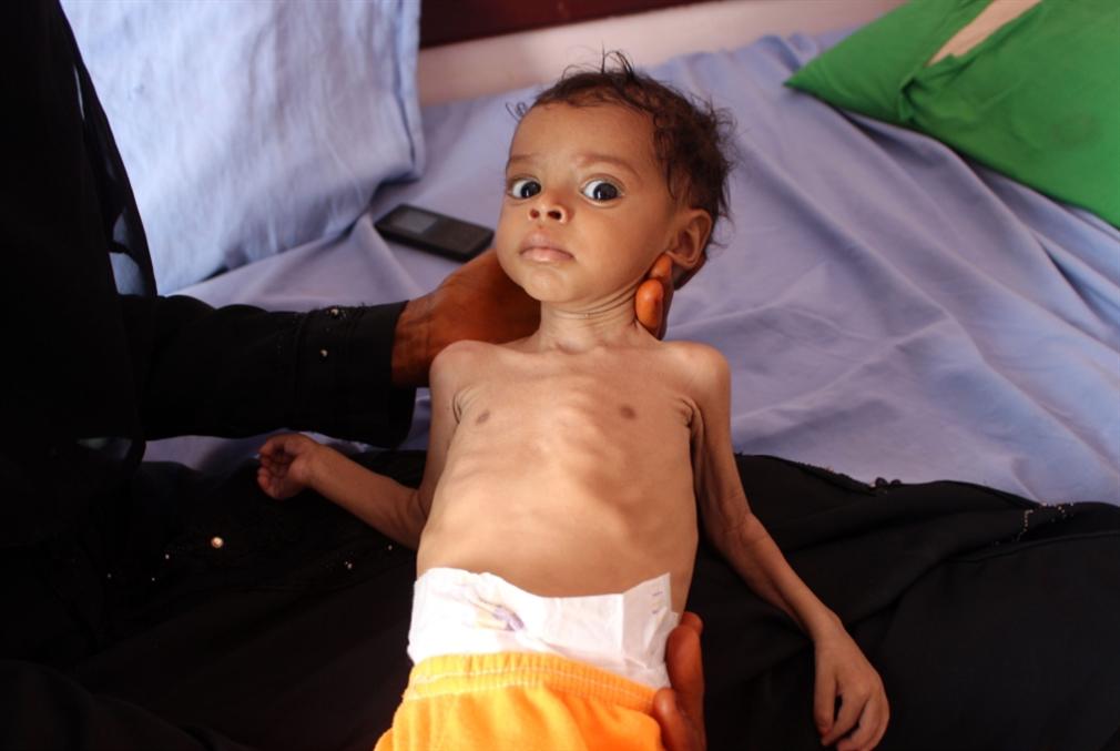 الملاريا والضنك يفتكان بالحديدة: تفشٍّ جديد يقتل العشرات