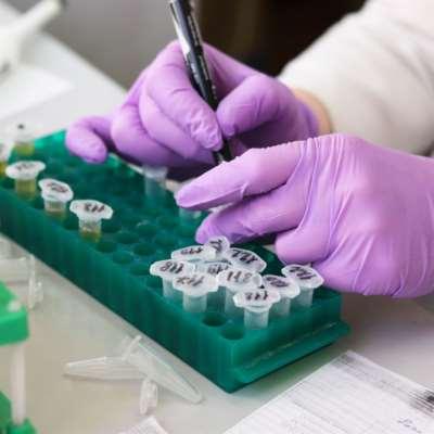 دراسة: فحص دم يكشف سرطان الثدي قبل ظهوره بخمس سنوات