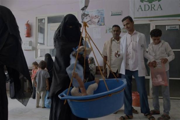 سكاي فيتزجيرالد: يوميات المجاعة في اليمن
