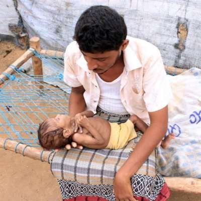الأمم المتحدة: اليمن على أعتاب «مجاعة كبرى»