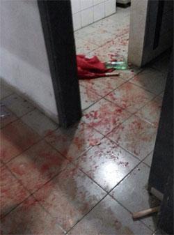 ارضية غرف الملابس في ملعب السد ملطخة بالدماء بعد احداث الشغب التي وقعت في مباراة غانرز والحرية صيدا (الأخبار)
