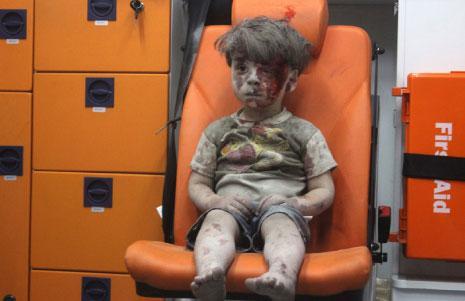 رغم كثرة  الحالات المشابهة، انشغل الإعلام الغربي والسوشال ميديا بصورة الطفل السوري عمران دقنيش (5 سنوات) جالساً في سيارة إسعاف، إثر إصابته في «قصف جوي» في حي القاطرجي في حلب. (محمود رسلان ــ الأناضول)